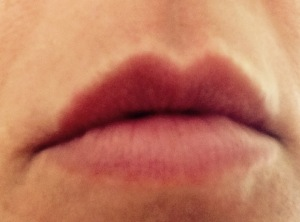 my lips after procedure