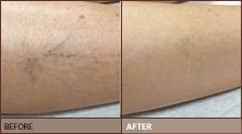 Sclerotherapy before and after pic